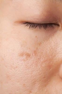 5 أسباب تجعل بشرتك تبدو مملة وشاحبة