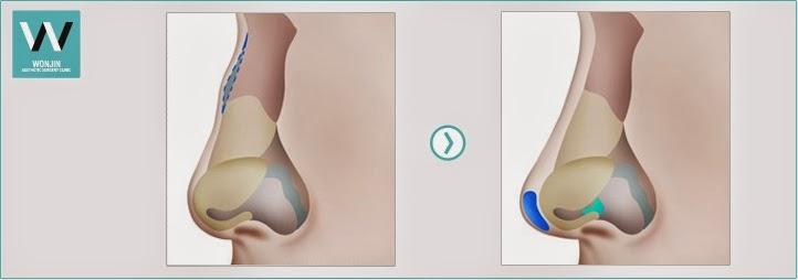 Operasi plastik hidung bengkok + memancungkan hidung di Wonjin