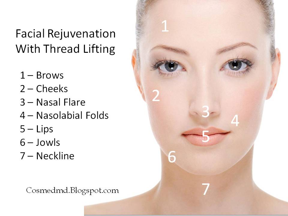 Thread Lifts - The No-Surgery Face Lifting Alternative ...