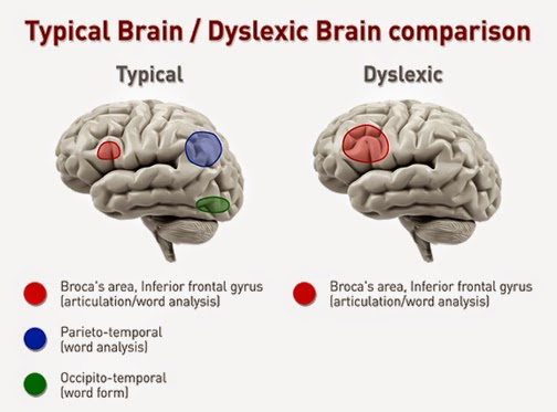 how to help someone with dyslexia read