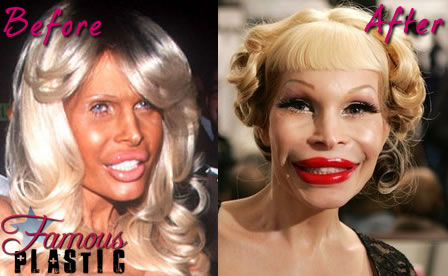 Star Plastic Surgery | Star Comestic Surgery: Amanda Lepore Plastic Surgery  Before and After Facelift and Browlips