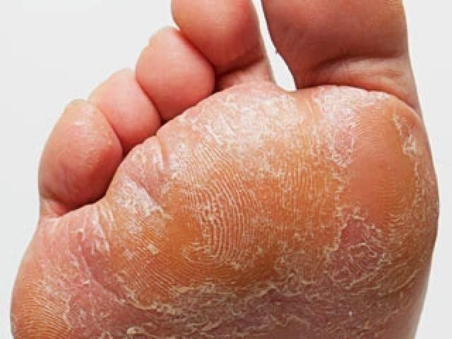 De la crema o el ungüento contra el hongo en los pies