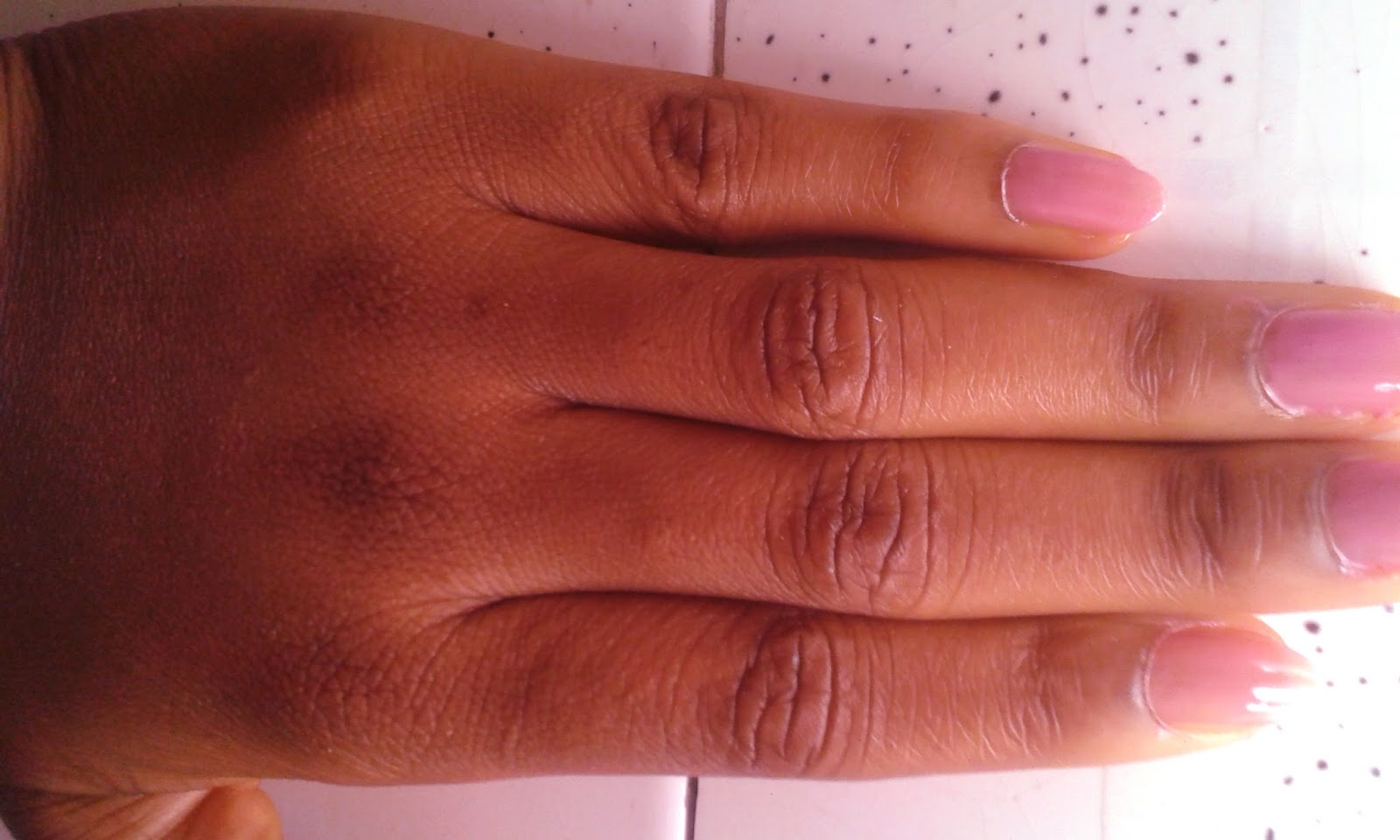 Dark Knuckles Is Perceived As One Of The Evidence Bleaching It Can Be Really Embarrassing For A Lady Imagine Visiting An Expensive Spa To Get New