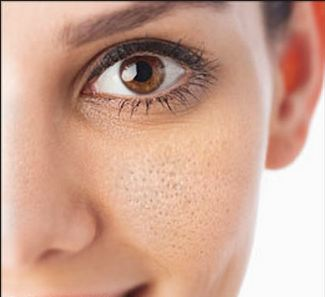 Beauty Tips And Recipes Remedies To Shrink The Open Pores