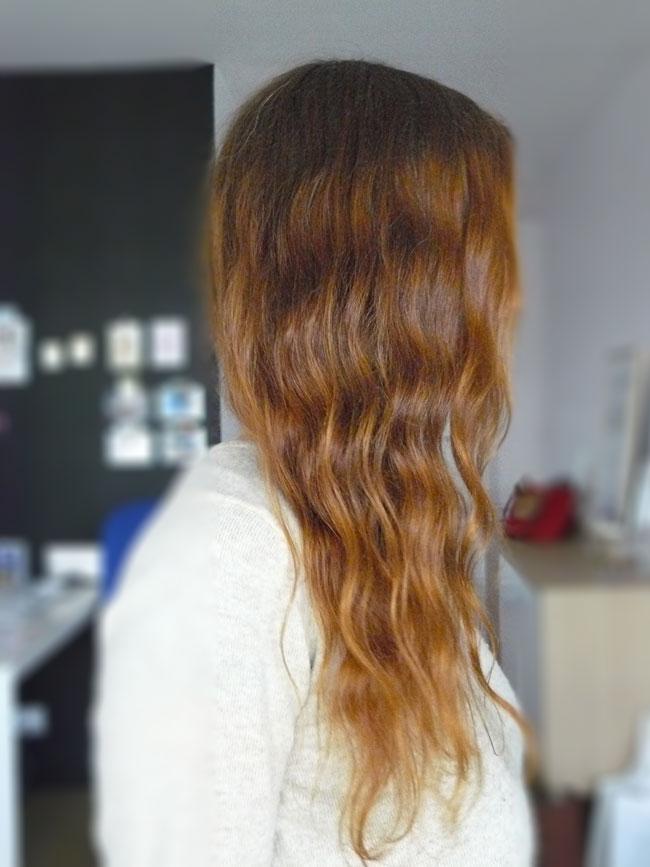 La chute des cheveux quelles vitamines accepter les rappels