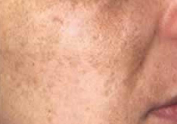 cara mengatasi jerawat: Menghilangkan Flek Wajah ...