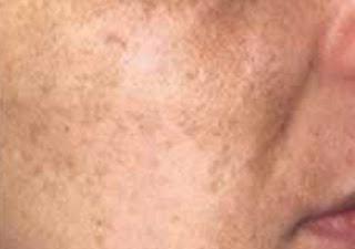 menghilangkan flek wajah