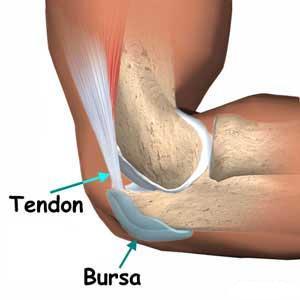 Resultado de imagen para bursitis rodilla