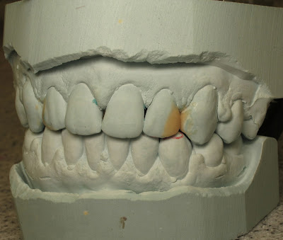 Diastema closure, composite, dental composite, braces, waxup, diagnostic waxup