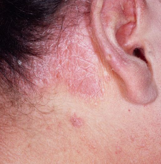 penyakit psoriasis penyakit kulit psoriasis penyakit kulit