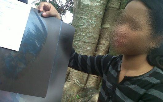 Indri Yani menunjukkan x-ray tentang wujudnya paku dalam kepalanya.  (Sumber: www.krjogja.com)