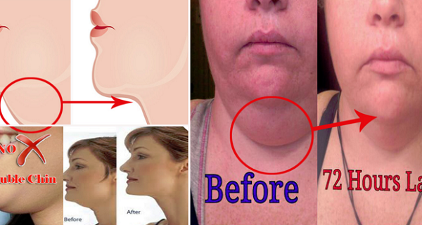 How To Get Rid Of A Double Chin In 72 Hours!