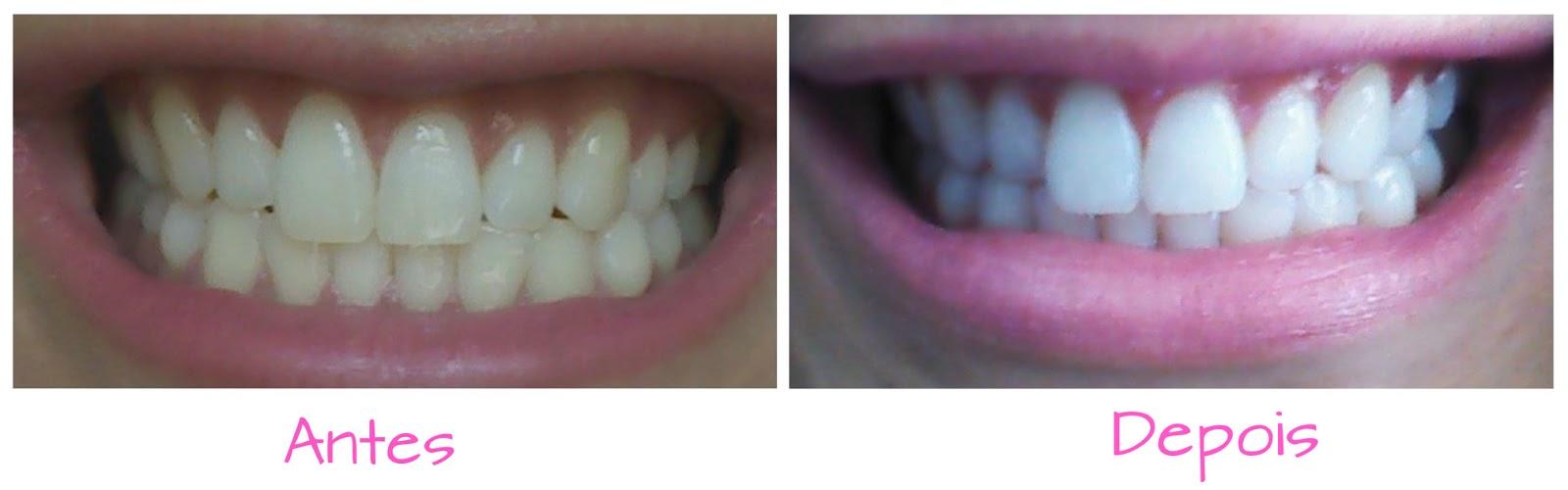 Oi Quirida Clareando Os Dentes