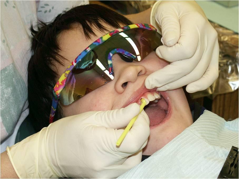 La operación láser y el tratamiento de la uña encarnada
