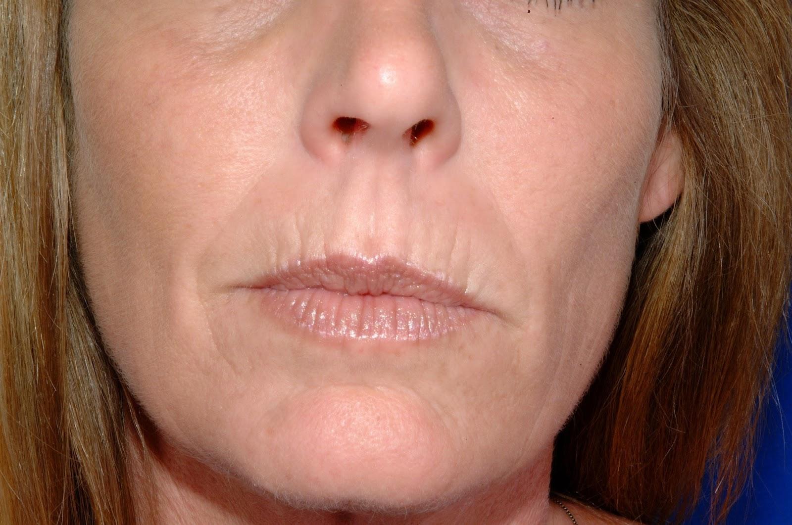 Resultado de imagen para arrugas