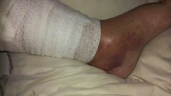 Tim Fasano Injury
