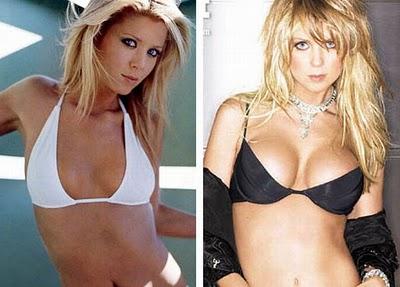 breast enlargement procedure