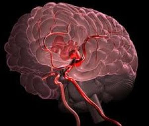 Brain Hemorrhage Treatment | What is a Brain Hemorrhage