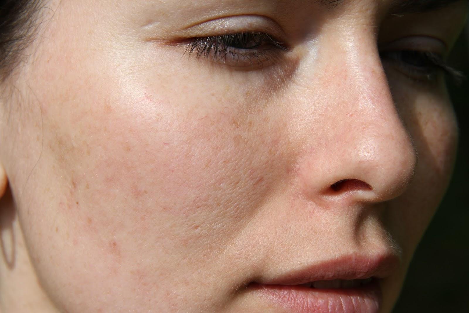 Прыщавые девушки фото 9 фотография