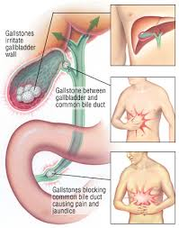 Gallbladder Health and Gallbladder Problems