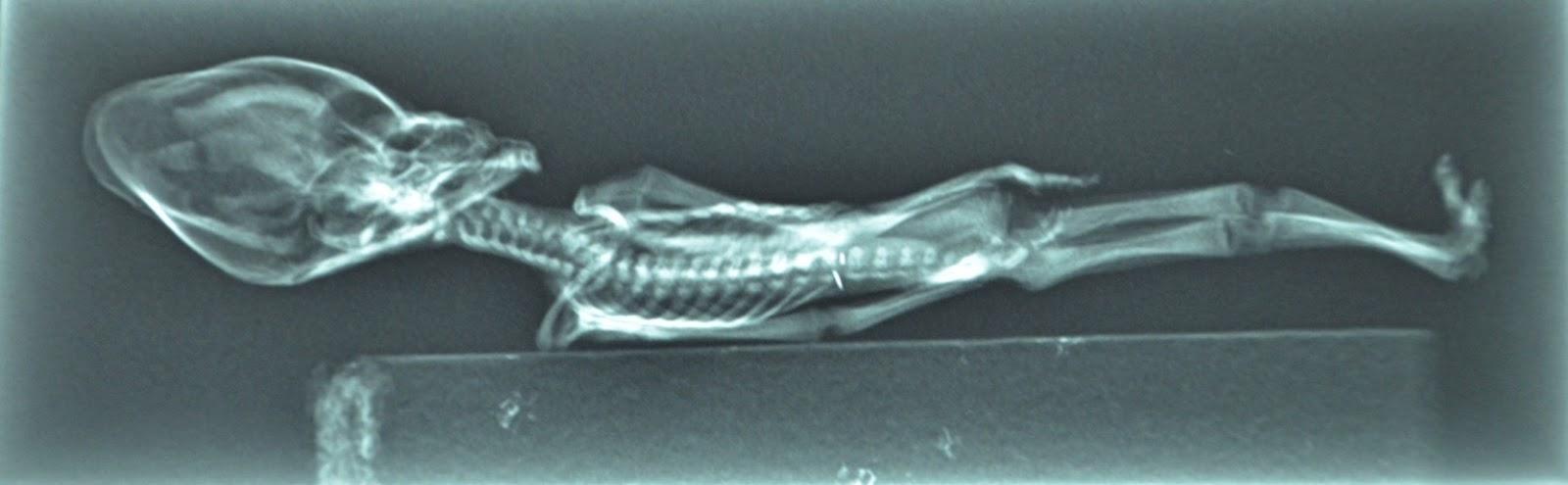 [Image: sirius-atacama-humanoid-alien-picture-x-ray.jpg]