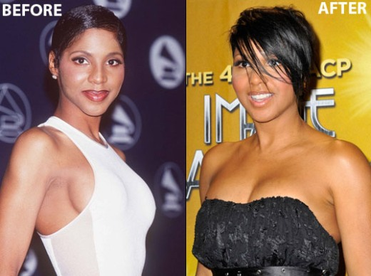 Tracey Edmonds Nose Job Plastic Surgery Before and
