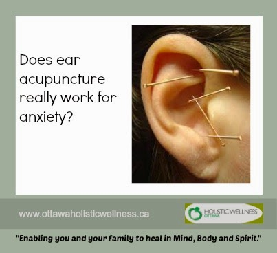 Does ear acupuncture really work for anxiety?