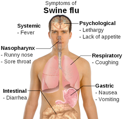 Swine flu symptoms 2013