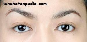 Mencegah stroke mata