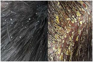 La máscara para los cabellos del huevo contra sekuschihsya de las puntas