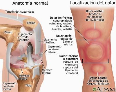 Dolor anterior de rodilla | Uruguay Crohn Colitis Ostomias y el Mundo