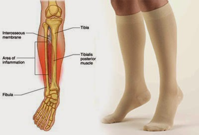 Cool image about How to Cure Shin Splints - it is cool