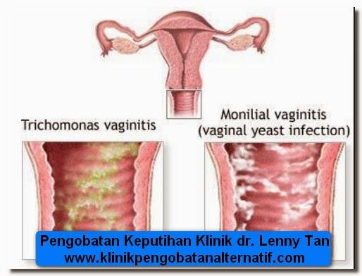 Kesehatan Wanita-keputihan images