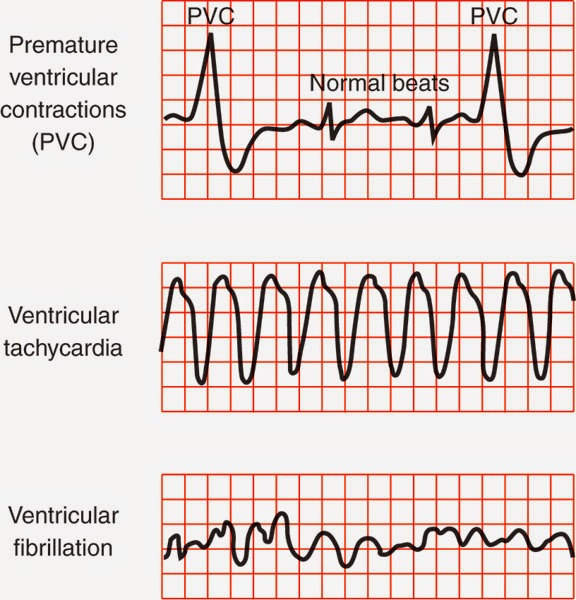 ventricular tachycardia vtac So reallyis there a difference between wide qrs tachycardia and vtif so can someone explain thanks.