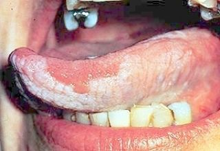 Le lichen plan (latin : lichen planus) est une maladie auto-immune touchant en général la peau, la bouche, ou parfois les deux.