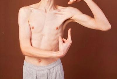 Bukan Berarti Badan Kurus Itu Sehat