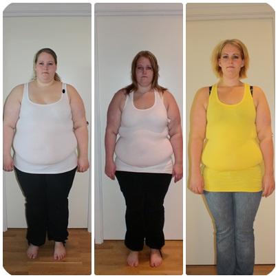 gastric sleeve før og etter bilder