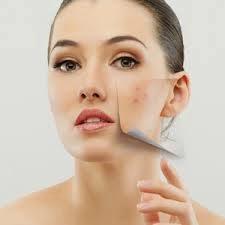 cara membersihkan wajah dari bekas jerawat dengan cream dokter; cara membersihkan wajah dari bekas jerawat dan flek hitam