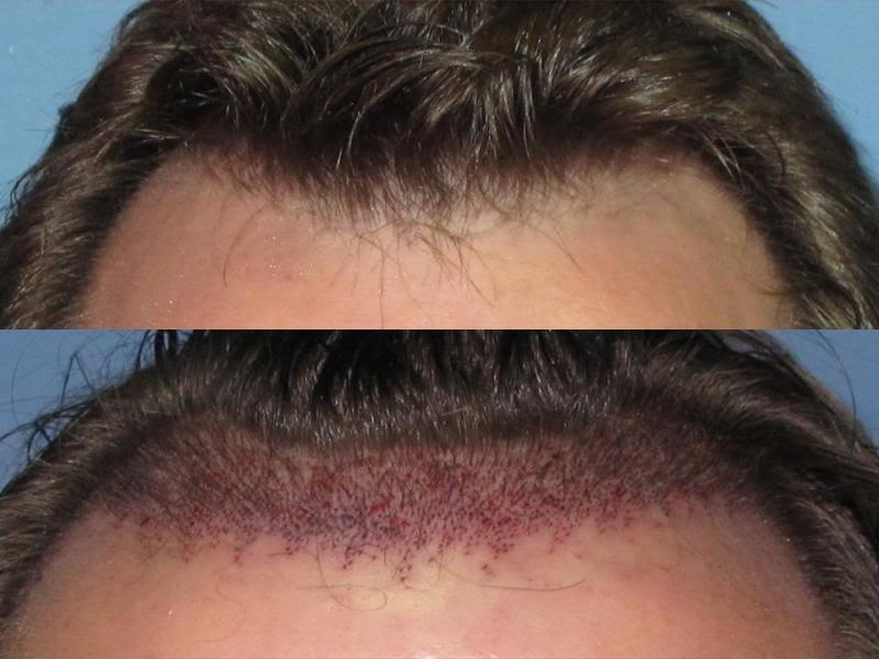 hår operation