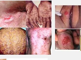 Image Penyakit Sipilis dan Obatnya