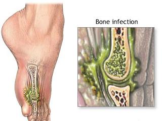 Pengobatan Infeksi Tulang Secara Alami