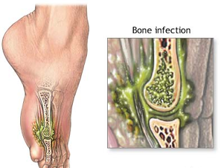 Sekilas Apa Itu Infeksi Tulang