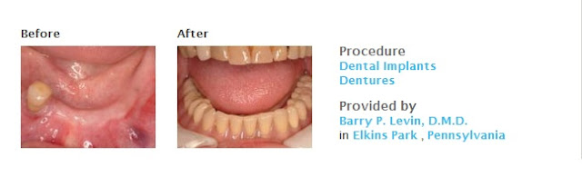 View Dental Implants Before and After Photos
