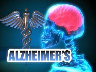 Vitamina E podría retrasar el Alzheimer
