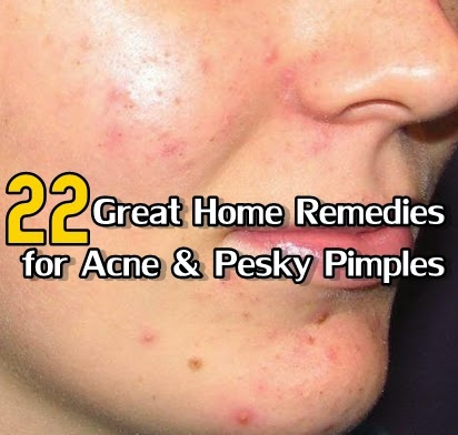 22 Great Home Remedies for Acne & Pesky Pimples