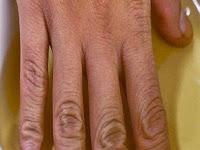Rendam Tangan di Cuka Apel, Wanita Ini Buktikan Keajaibannya