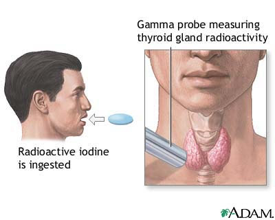 Natural Treatment For When Thyroid Has Been Removed