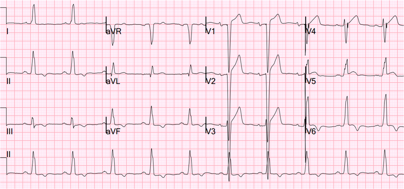 Dr. Smith's ECG Blog: Left Bundle Branch Block with Less Than 1 mm ...