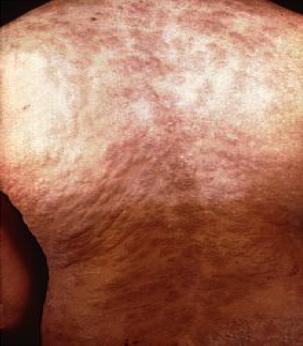 Llagas, Sntomas parecidos al acn en la piel del pecho