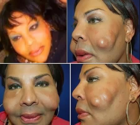 inquietantes cambios tras la cirugía estética